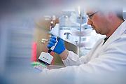 HIV Vaccine trials