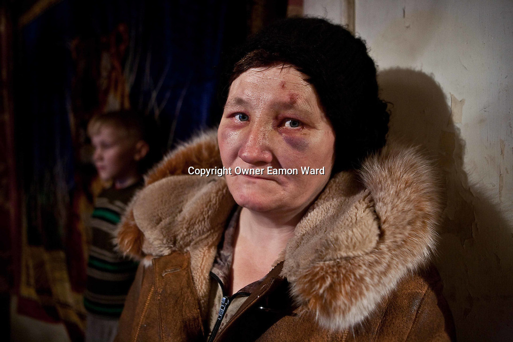 """A resettled woman from the exclusion zone around Chernobyl, in her home north west of Minsk where she bears the scars of """"walking into a tree branch"""". Chernobyl's human costs are widespread affecting about seven million people.A generation later children are being born with birth defects ,heart problems and thyroid cancer.The crippled economy of Belarus has led to poverty, social problems and domestic abuse."""