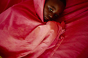 "Jean, an orphan of Burundi's ethnic conflict at Shalom House shivers under a blanket with malaria. Shalom House was founded by Marguerite Barankitse (known as the 'Angel of Burundi'). During the 1994 genocide, Barankitse, at great personal risk, managed to save 25 orphans, Hutu, Tutsi and Twa and built a home for them. Currently, she has helped more than 10,000 orphans and separated children who can grow up in an ""extended adopted family"" in security, education and love."