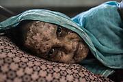 Rohingyas_07<br /> Shaheda tiene 40 años y el cuerpo quemado porque, según denuncia, el ejército de Myanmar prendió fuego a su aldea para expulsar a todos los rohingyas. Se recupera de sus heridas en un hospital de Cox´s Bazar , en Bangladesh. 24/09/2017.