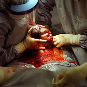 C-Section birth for the Discovery Channel Maternity Ward series