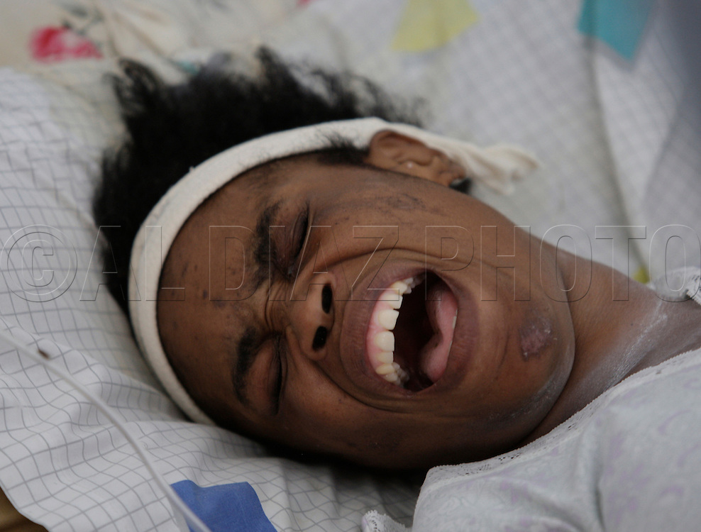 Earthquake aftermath in Haiti on January 21, 2010..An injured Marlene Julien reacts as her she reacts to her wounds being treated at Hospital Saint Nicolas. She is from the Port-Au-Prince and traveled to Saint Marc. .