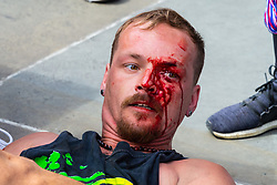 """A Romanian Street performer's face is bloodied after chasing down and fighting with an alleged pickpocket, also Romanian. Street performers, many of them Eastern European, demanded that Romanian pickpockets desist from """"working"""" on the North Terrace of Trafalgar Square where they steal from crowds watching the street entertainers. London, August 02 2019."""