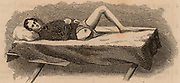 American Civil War 1861-1865.  Casualty displaying healed stump after removal of his leg at the hip joint. Wood engraving 1865.