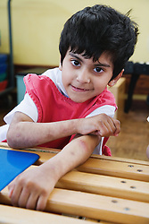 Child with physical and learning difficulties in lesson,