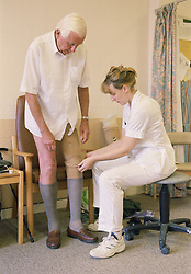 Prosthetist with elderly patient in mobility centre; fitting aboveknee (transfemoral) suction limb,