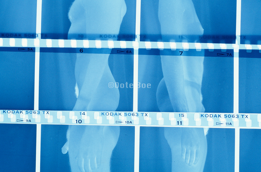 negatives of male and female nudes standing with there backs towards each other