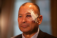 Eddie Jones, the England Head Coach speaks to the press sporting a black eye and bandage after an accident in his bathroom ahead of the launch. RBS Six Nations 2017 media launch at the Hurlingham Club, Ranelagh Gardens in London on Wednesday 25th January 2017.<br /> pic by John Patrick Fletcher, Andrew Orchard sports photography.