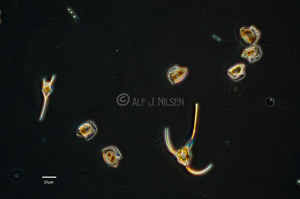 Dinoflagellates from the genera Dinophysis and Ceratium seen through a microscope.  Collected from the waters of southern Norway in early June 2010.