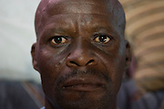 Kalicha Township, Cape Town, South Africa. Mr Sisula worked worked in gold mines from the 1969 to the 1989. The silicosis that he contracted during the minor activity increases the possibility to get TB when he was exposed. Today TB and HIV affect him. For long time he couldn't have access to medical care.