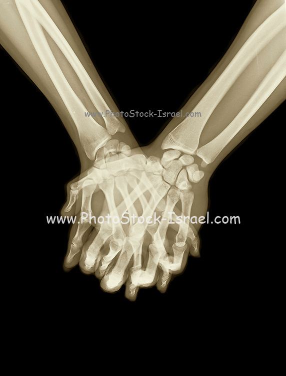 x-ray of a couple Holding Hands