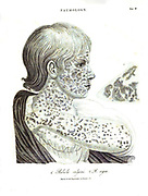 Illustration of a pathological skin disease caused by Rubeola measles From the Encyclopaedia Londinensis or, Universal dictionary of arts, sciences, and literature; Volume XIX;  Edited by Wilkes, John. Published in London in 1823