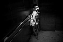Zeng Pengfei, 7, of Mianzhu, is seen at the Sichuan Limbs Maim Restoration Centre in Chengdu, Sichuan in China.