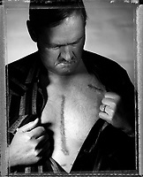 Brett Nelson bares the scars from a pair of open heart surgeries, one to receive a heart transplant. The smaller scar on the upper-left side of his chest is where a pacemaker/defibrillator was implanted to keep his old, ailing heart beating.
