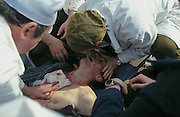 Moscow, Russia, 04/10/1993..Doctors try to save a demonstrator dying of bullet wounds during the fighting around the Russian Parliament. When President Boris Yeltsin dissolved the opposition-dominated Russian Parliament,  deputies and supporters, led by Vice President Alexander Rutskoi, barricaded themselves inside the White House. After a 10 day stand-off the situation exploded into violence between pro and anti Yeltsin forces.