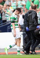 Celtic's Kieran Tierney is substituted after suffering a facial injury during the William Hill Scottish Cup final at Hampden Park, Glasgow.