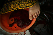 A woman lies on a bucketful of blood inside the delivery room at the Faizabad Provincial Hospital, Faizabad in Badakshan province, Afghanistan, Tuesday, May 15, 2007. Afghanistan has the second highest maternal mortality rate in the world only after Sierra Leone. An astonishing number of 25,000 women die from obstetric causes per year, or 1 woman dies every 27 minutes. A UN report released in 2000 indicates that the national MMR in Afghanistan was 1,900 per 100,000 live births, whereas it was 17 in the United States. Ragh district in Badakshan province showed the highest mortality risk ever recorded in human history, with 64% - more than half of women - of reproductive age died during 1999 and 2002. The causes of deaths were analyzed mainly in two parts: direct and indirect. Direct causes include haemorrhage, obstructed labour, cardiomyopathy, sepsis, obstetric embolism, and pregrancy-induced hypertension; and the indirect causes were tuberculosis, malaria, and obstetric tetanus. Geographical and economical factors also contribute to high mortality in a place like Badakshan where most people have limited access to transportation thus making it harder for women to reach proper health care centers.