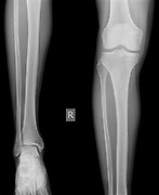 x-ray of the right knee of a 42 year old male no fracture or dislocation shown