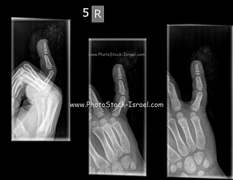 X-ray of a hand with a broken distal phalanx in the small finger