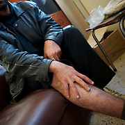 Maher Ebraheem, a 37 year old Syrian refugee,  shows marks of tortued inflicted by Syrian secret police while in detention at Homs prison.