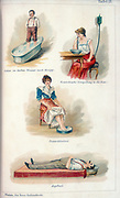 Hydrotheraphy treatments, c1902. Walking foot bath, nasal douche, foot bath  and head bath. One of the oldest forms of medical treatment, hydrotherapy enjoyed a resurgence in popularity in the late 19th century. From 'Die Neue Heilmethode Lehrbuch' by M Platen. (Berlin, c1902).