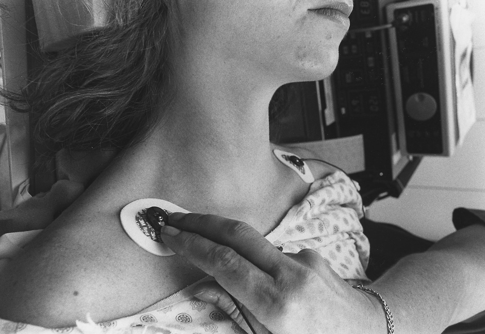 Medicine: Attaching electrodes to skin for an EKG monitoring. MR