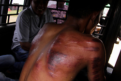 July 5, 2018 - Lhokseumawe, Aceh, Indonesia - A man is seen with a bruised back after being flogged in public..Aceh is the only province in Indonesia that publically flogs people for violating the Islamic sharia law, in 2017 to 2018 65 people were sentenced to whips. (Credit Image: © Maskur Has/SOPA Images via ZUMA Wire)