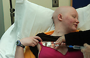 Eileen Brazil, age 18, is seen at Memorial Sloan-Kettering Cancer Center in Manhattan, NY. She receives chemo. 6/14/2005 Photo by Jennifer S. Altman