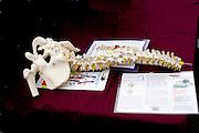 Hip and spine skeleton demonstration. Grand Old Day Street Fair St Paul Minnesota USA