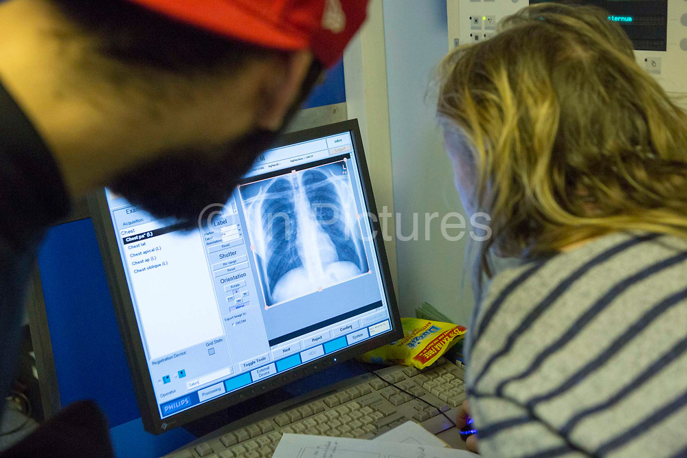 A female radiographer, Diana, reviews a young man's digital chest x-ray checking for abnormalities associated with tuberculosis (TB) and other chest infections. The chest x-ray was performed on the NHS Mobile X-ray Unit (MXU) van screening for TB. The van is parked outside a hostel in central London and the visit is part of a public health intervention for Active Case Finding for TB in hard to reach groups. The rates of TB in London are higher than any other Western European capital and is a major public health problem. TB is an infectious disease, but treatable and curable if diagnosed in time. Early diagnosis is a key to TB control and Active Case Finding is an important part of this.