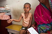 A young Indian child is given daily medication tablets for Tuberculosis (TB) which are being dispensed by a Directly Observed Therapy (DOT) worker.  The treatment for TB is a minimum 6 month course of combination antibiotics that must been taken everyday, otherwise fatal drug resistance can develop.  The medication is free and provided by the government. TB is an infectious disease and a huge public health issue often associated with poverty.  TB is completely curable, however TB rates are increasing and India suffers from the highest burden of TB in the world.  Health clinic in Tehkhand Slum, Delhi, India.
