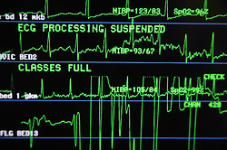 Close up of central monitoring screen at the nurses station on the Cardiology Ward,