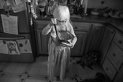 Lotus Hoben helps make oatmeal cookies while social distancing during the coronavirus pandemic in the Hudson Valley, New York. Forest and Lotus Hoben, ages 10 and 6, were adopted from China and have albinism, a rare group of genetic disorders that cause the skin, hair, or eyes to have little or no color. Albinism is also associated with vision problems. According to the National Organization for Albinism and Hypopigmentation, about 1 in 18,000 to 20,000 people in the United States have a form of albinism.