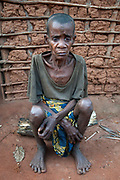 Central African Republic. August 2012. Batalimo. Pk6 - Aka (Biaka) people/ pygmies or 'citizens' as they would rather be known. Very malnourished old woman.