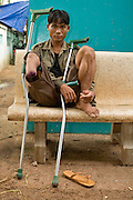 27 JUNE 2006 - SIEM REAP, CAMBODIA: HAM KOMSUP, 28, waits for physical therapy to start at Handicap International in Siem Reap, Cambodia. He was a child soldier fighting the Khmer Rouge near the Thai border in 1993 when he stepped on a small plastic landmine which blew off his foot and part of his leg. He is now undergoing therapy at Handicap International. Handicap International helps Cambodians maimed by mines and unexploded ordinance as well as traffic accidents and disease adjust to a life without limbs. Cambodians are still wrestling with the legacy of the war in Vietnam and subsequent civil wars. At one time it was the most heavily mined country in the world and a vast swath of Cambodia, along the Thai-Cambodian border, is still mined. In 2004, more than 800 people were killed by mines and unexploded ordinance still found in the countryside.  Photo by Jack Kurtz