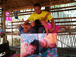 """EXCLUSIVE: By Sherbien Dacalanio in Philippines A Filipino family is desperately trying to raise funds required for separation of their conjoined twins attached at the forehead despite the risk of them dying in the operation. Chiara and Charina, 7, from Roxas in Palawan, were born with craniopagus. The conjoined wins' struggle starts with waking up and till the time they go to sleep. In between of everything, whatever daily chores everyone does is excruciating painful and difficult for them. From bathing, to eating, while going to school, they need to manage their heads that is stuck to each other sharing an artery. Sonia Nortega, 37, the mother of twins, says: """"We conducted a series of medical procedure on the twins, such as MRI and CT Scan. Much to our dislike, the reports suggest that it will be a risky affair to separate Chiara and Charina. In the arterial studies there is clear arterial crossover and sharing between the twins. In addition the venous studies show a very robust outflow circulation in the larger venous vessels. There is also very poor central deep drainage in the veins.' """"But we have decided to go ahead with the process anyway. I am well aware that during the process we might end up losing one of the twins. If one of them gets cured and starts leading a normal life, I would know the other sister's sacrifice was worth. I am positive and believe in the miracles of science. I wishes to send my daughters to better surgeons, who can handle the risk of this case and cure her daughters. My heart says that they both would survive the operation and would be able to lead a normal life,"""" the said 37-year-old mother of five. The Nortegas have three other children that were born normal without any complication and lead normal life. After the doctors told the family that the separation of the twins possible is but involves a risky operation, a local charity withdraw its earlier financial support. Now, the Nortegas are finding it difficult to raise f"""