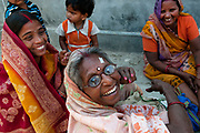 Bihar India March 2011. Akhand Jyoti Eye hospital, Mastichak. Patients wait for cataract operations .