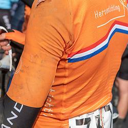 31-03-2019: Wielrennen: Kattekoers: Ieper<br /> Axel van der Tuuk, schaafwonden die getuigen van zijn val