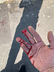 The bloodied stump of his middle finger belies the benign nature of a simple letterbox where Amazon delivery driver Husam Aljuburi, 29, of Ealing, West London, lost the top quarter of his middle finger after tearing it off in a letterbox as he delivered a parcel at a home in Slough. London, April 09 2019.