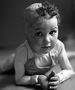 """Sophie Delezio 3  portrait """"a survivor"""".<br /> On Dec 15 2003 a car careened into Roundhouse Childcare Centre in Fairlightas while Sophie and her playmates napped. She suffered third degree burns to 85% of her body requiring six months in hospital and the amputation of her feet, her right ear and fingers to her right hand."""