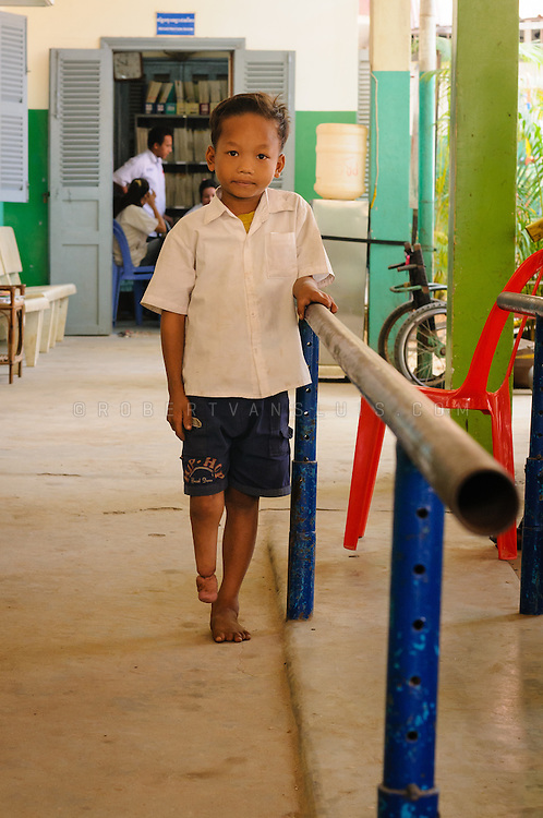 Boy with a congenital disorder, which his father attributes to bad kharma, receiving fysiotherapy for club foot, Physical Rehabilitation Center, Siem Reap, Cambodia. Photo © Robert van Sluis