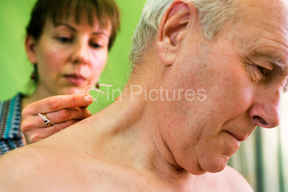 Dr Hass performing accupuncture on a man at the London Homeopathic Hospital on 11th December 2006 in London, United Kingdom. The patient had severe phantom pain in his index finger which was lost in an accident 4 years earlier.