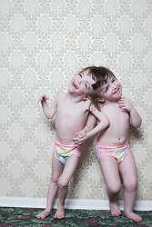 Portrait of craniopagus twins Tatiana and Krista Hogan in Vernon, British Columbia, Canada, Feb. 27, 2011. The twins, born on Oct. 25, 2006, are connected at the head and share a brain.  Neurologists say the twins are the only such set that have a common neurological connection.