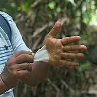 Beder Chavez, an Indian naturalist, shows natural latex he rubbed on his hands from a cut he made in a rubber tree.