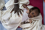 """Mcc0075406 . Daily Telegraph<br /> <br /> DT Foreign<br /> <br /> Niacin Ruot with her twins Both and Nyadit who are suffering from severe malnutrition .<br /> <br /> The IMC Paediatric ward in POC 3 , a """"Protection of Civilian Camp"""" inside the vast UN compound on the outskirts of Juba . Parents bring their children in with acute malnutrition needing urgent treatment .<br /> <br /> Over 20,000 civilians who predominantly fled from conflict in the equatorial states of South Sudan . United Nation's agencies recently announced a famine in the war torn country .<br /> <br /> Juba 27 February 2017"""