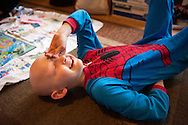 """13 FWB. 2016 -- BRIDGETON, Mo. - Trevor Beckermann, 6, who suffers from the autoimmune disorder alopecia universalis, joins his mother Meagan Beckermann (not pictured) in playing the board game """"Life"""" at the family's home in Bridgeton, Mo., Saturday, Feb. 13, 2016. Meagan says Trevor developed the illness, which results in the complete loss of hair on the patient's scalp and body, after the family moved to their Bridgeton home in 2012. Bridgeton is located in the St. Louis suburbs near a landfill with known nuclear waste from the Manhattan Project. Photo © copyright 2016 Sid Hastings."""