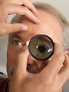 Dr. Paul Baker performs an indirect opthalmoscopy of the retina of his father, Dr. Mark Baker, at Mid-Hudson Retina Consultants in the Town of Wallkill on Tuesday, Aug. 2, 2011. Dr. Paul Baker is holding a 20+ diopter.