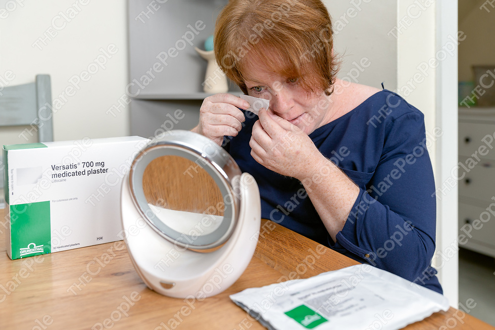 Chronic Pain sufferer Jennifer O'Meara applying medicated plaster Versatis to her face to relieve the pain