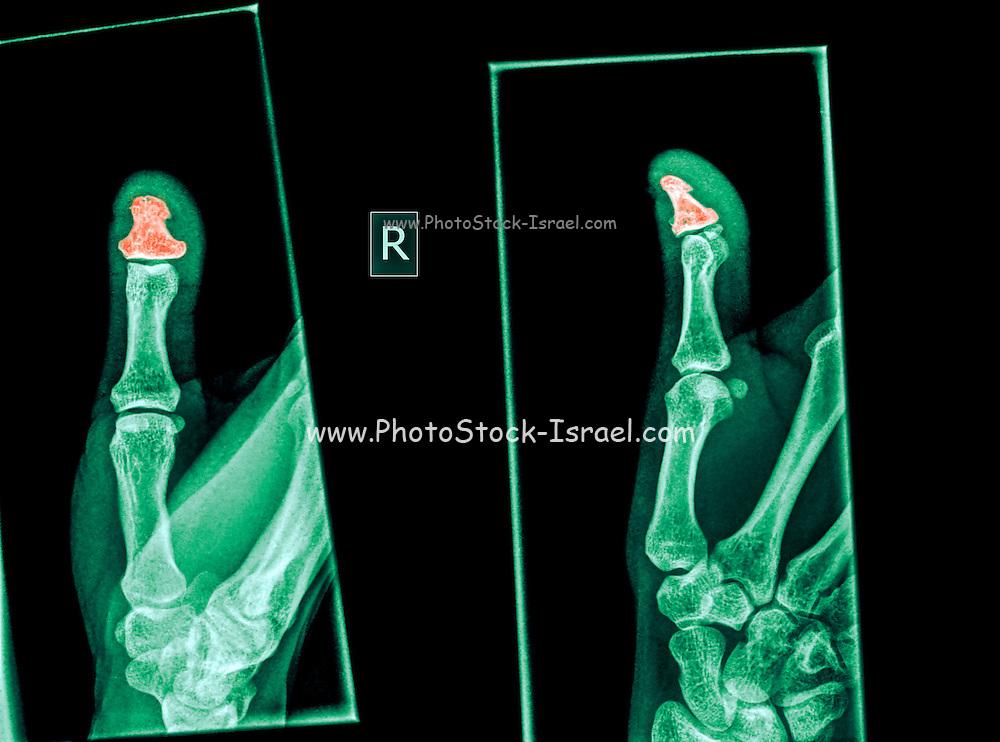 X-ray of a thumb with a broken distal phalanx