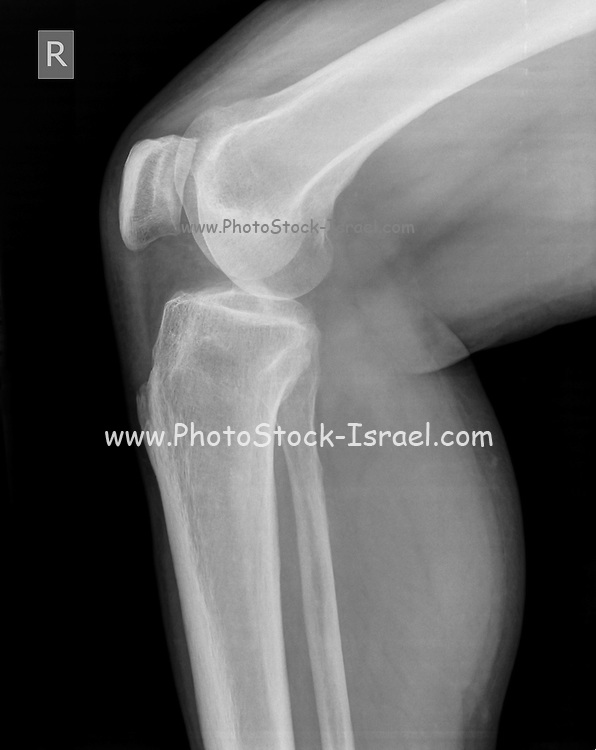 Knee x-ray of a 44 year old male patient front view